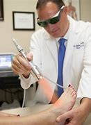 What Is Involved When You Have Laser Therapy For Mole Removal?